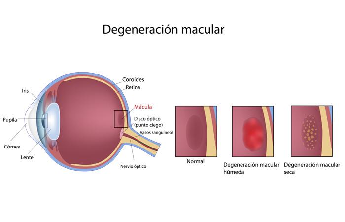 Degeneración Macular - DMAE