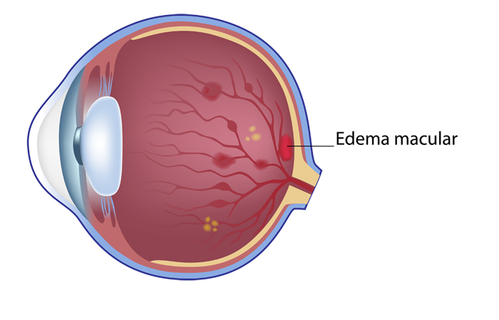 Edema macular diabético